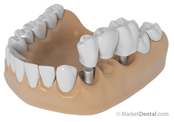 dental crowns and bridges market in Global dental crowns and bridges market 2014-2018 dental crowns and tooth bridges are prosthetic devices used to restore teeth shape, size.