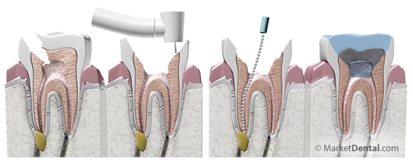 Root Canal Treatment, Laurel Dental